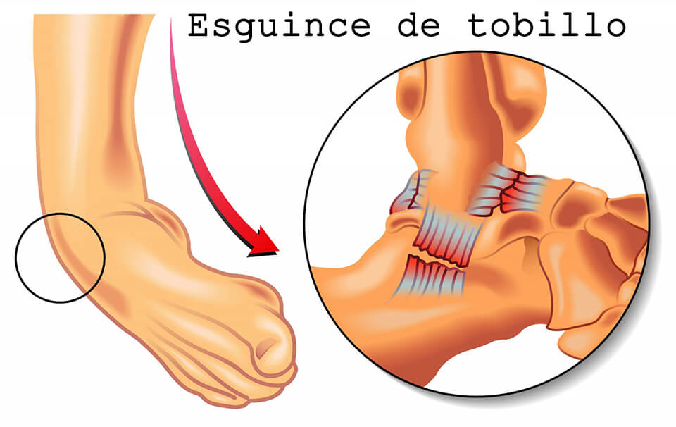 esguince_tobillo_clinica_martin_gomez_granada