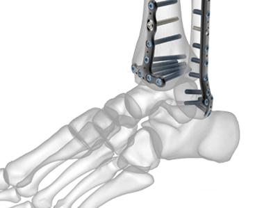 osteosíntesis