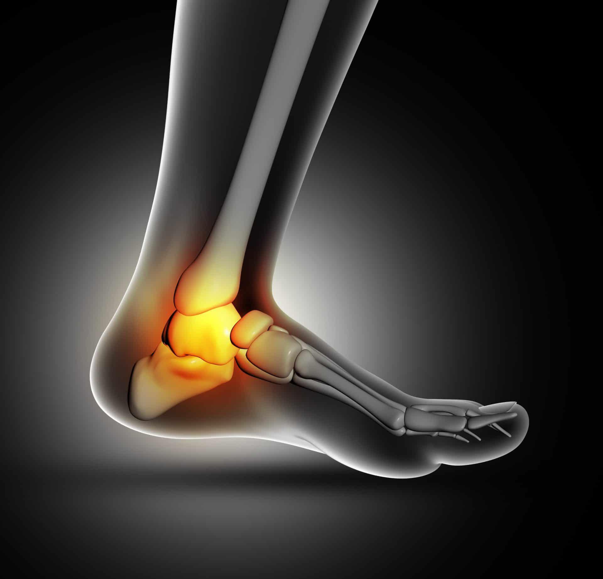 Artrosis de tobillo en Granada