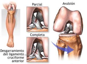 Rotura parcial ligamento cruzado anterior