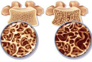 hueso osteoporotico