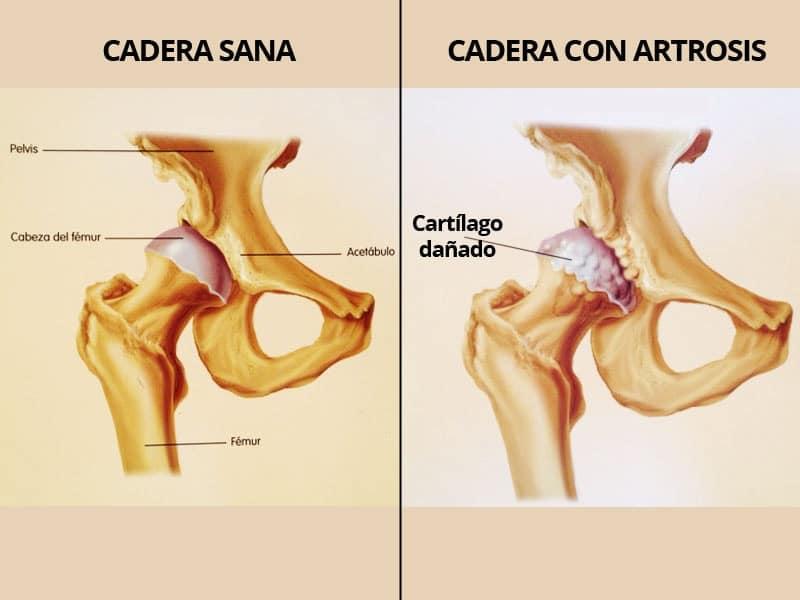 artrosis de cadera en Granada