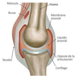 Como quitar el liquido de la rodilla