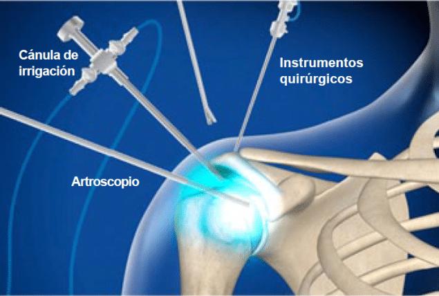 artroscopia de hombro en Granada