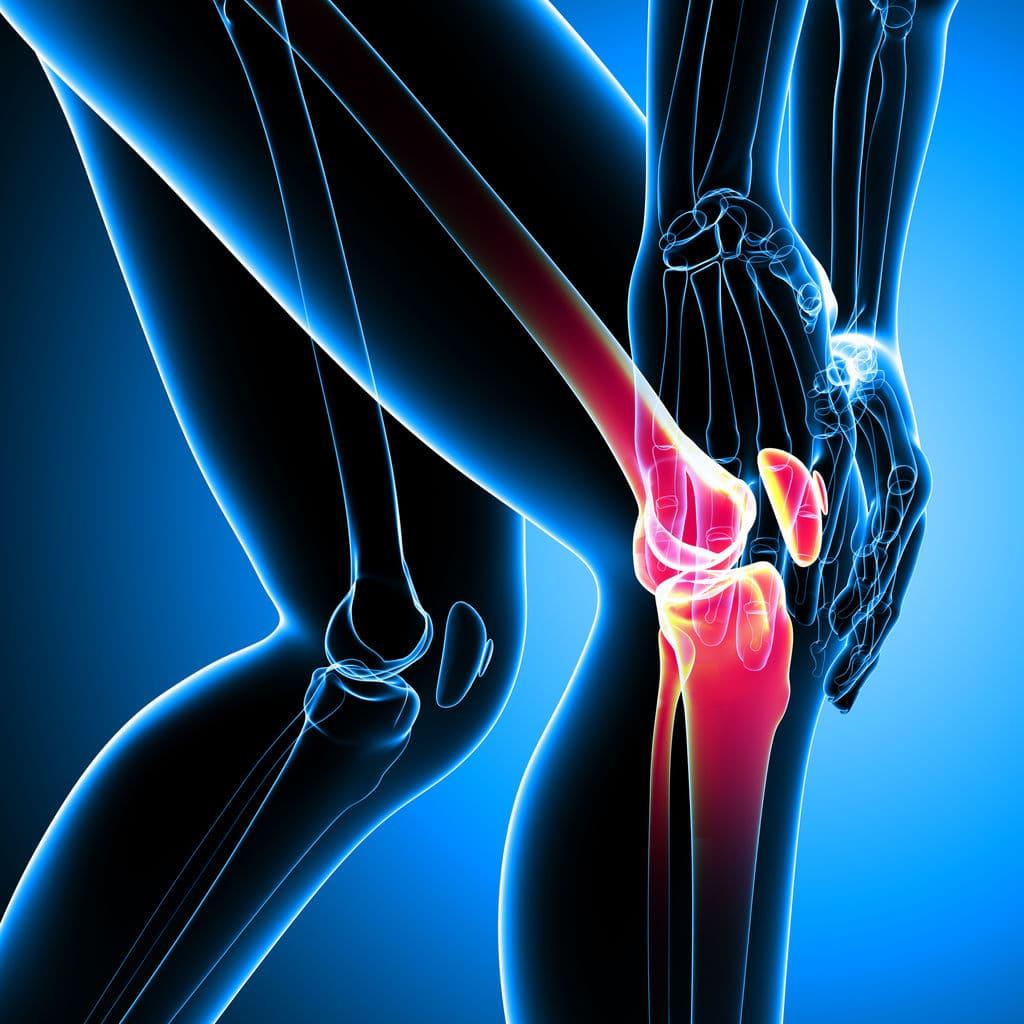 artroscopia en la rodilla