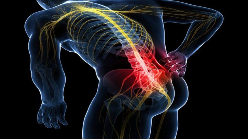 tratamiento de hormigueo del nervio ciático