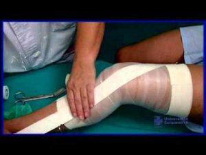 lesión de ligamentos
