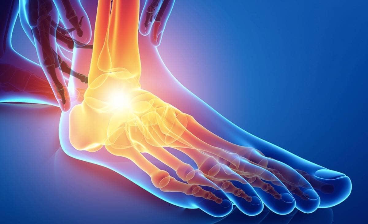 Causas del dolor en el tobillo