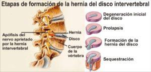 etapas en la formación de la hernia discal
