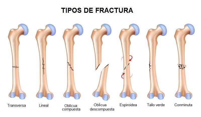 Fisura ósea y fractura de hueso