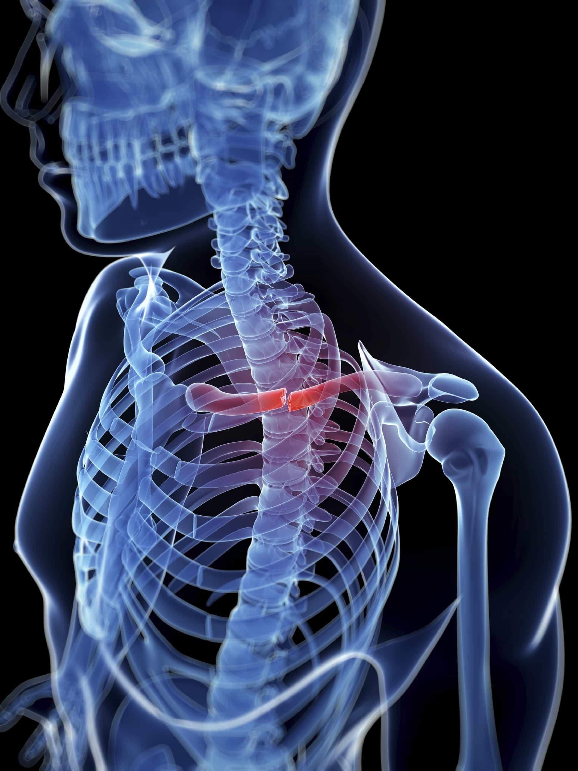 Cómo tratar una fractura de clavícula