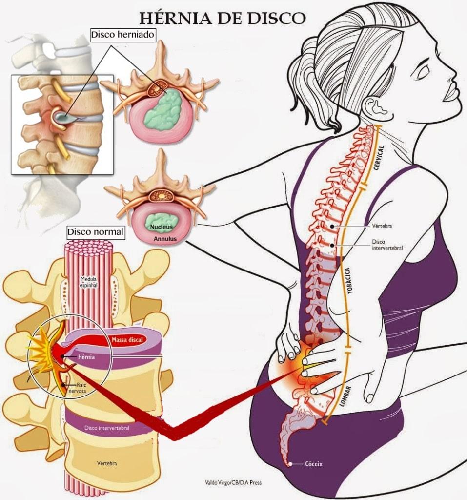 El método público del tratamiento de la osteocondrosis de pecho
