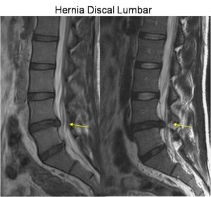 hernia lumbar