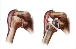 artroplastia hombro