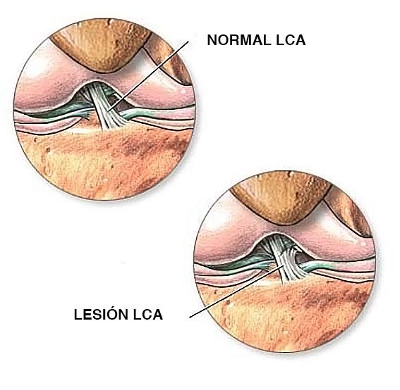 rotura de ligamentos
