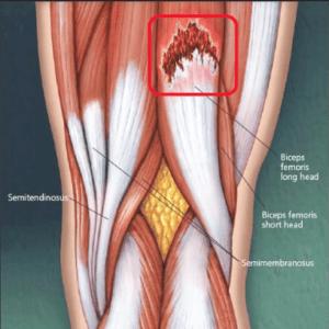 microrotura muscular