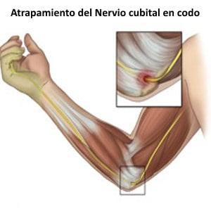 lesión cubital