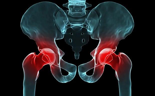 necrosis de cadera