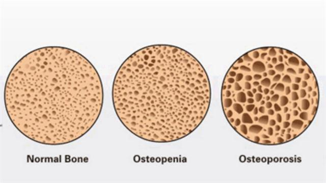 Image result for osteopenia