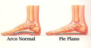 pies planos