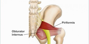 Síndrome piriforme