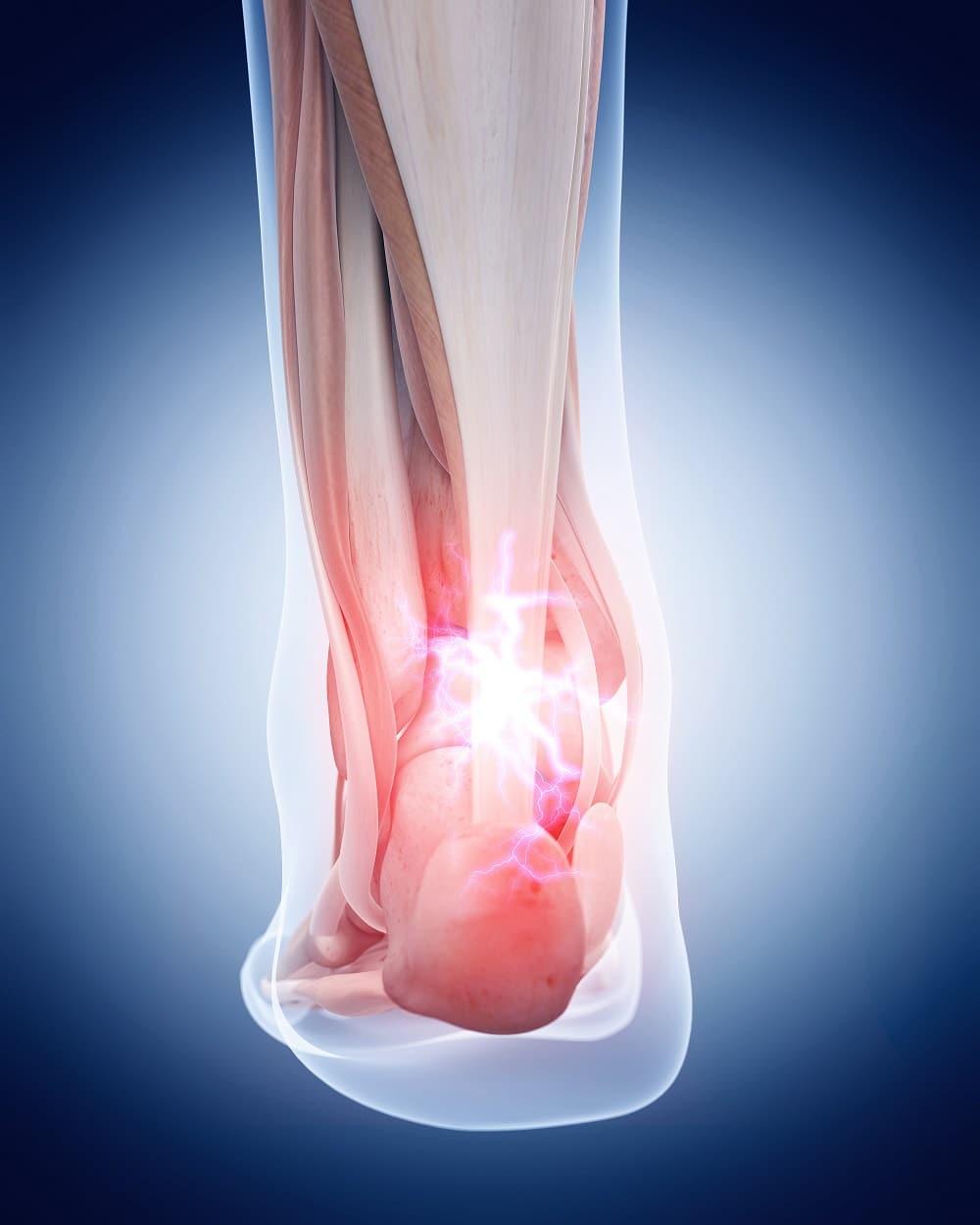 rotura del tendon de aquiles