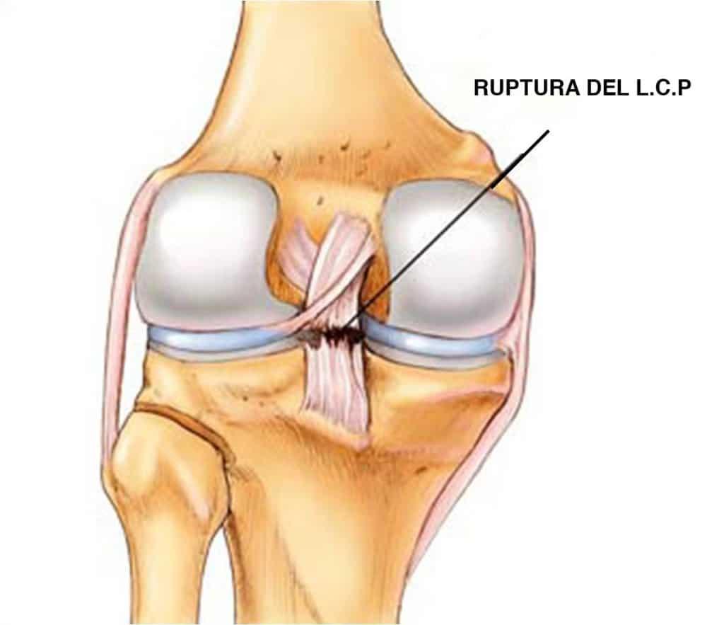 lesión ligamento cruzado
