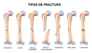 lesión ósea