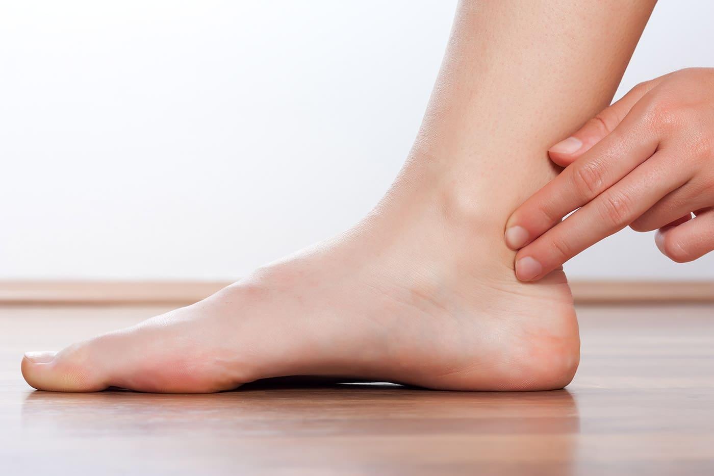 torcedura de tobillo